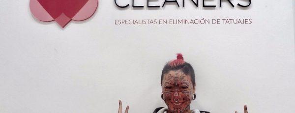 La mujer más tatuada de Europa elige Tattoo Cleaners para eliminar los tatuajes de su cara