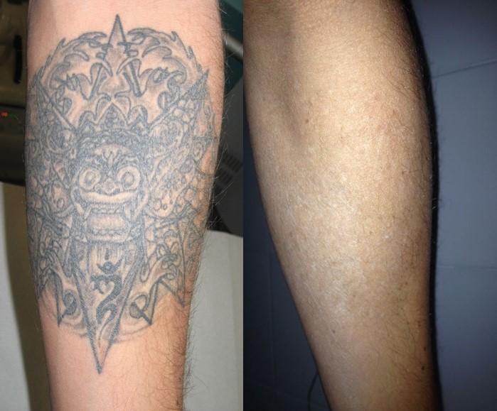 6 De Cada 10 Persona Se Arrepienten De Haberse Hecho Un Tatuaje